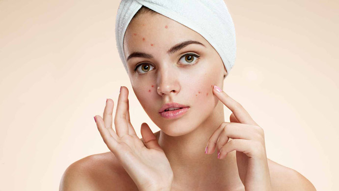 imagenomic-portraiture-remove-acne-from-images