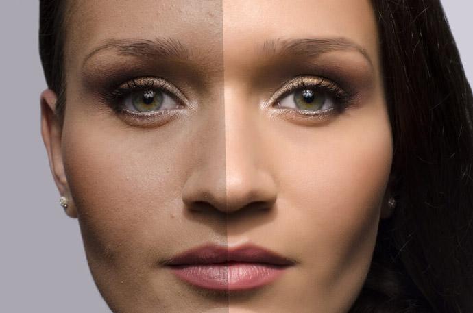 imagenomic-portraiture-remove-acne-from-photos